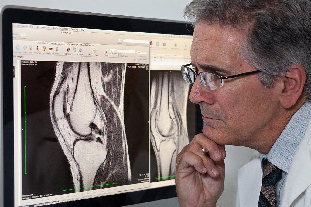 Orthopedic surgeon examins patients MRI knee scan